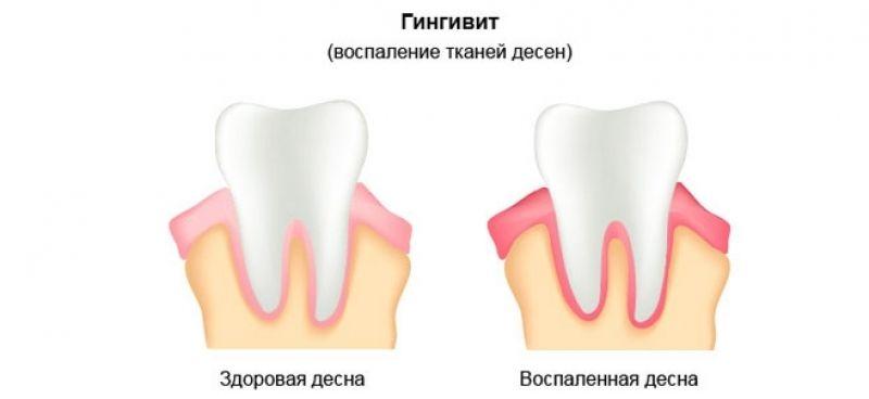 Плазмолифтинг в стоматологии - Много зубов