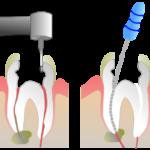 Пломбировка канала зуба