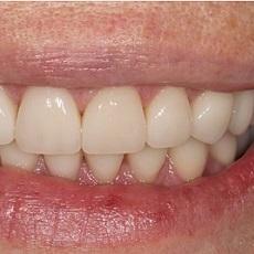 Пролечены кариесы, убраны зубные отложения и установлены 6 имплантатов Astra Tech .На имплантаты мы изготовили коронки из диоксида циркония, а передние зубы покрыты винирами из керамики E.max с минимальным препарированием.